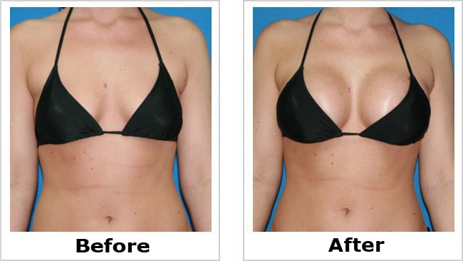 Breasts before and after pics