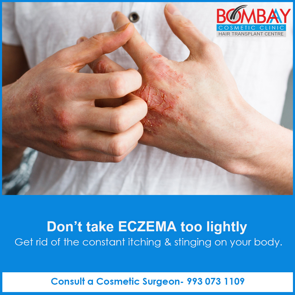 Facts you Need to Know About Eczema - Bombay Cosmetic Clinic