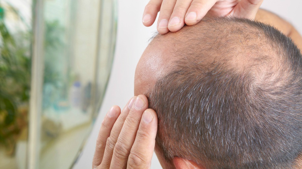 adult derived stem cell therapy for hairloss treatment in navi mumbai