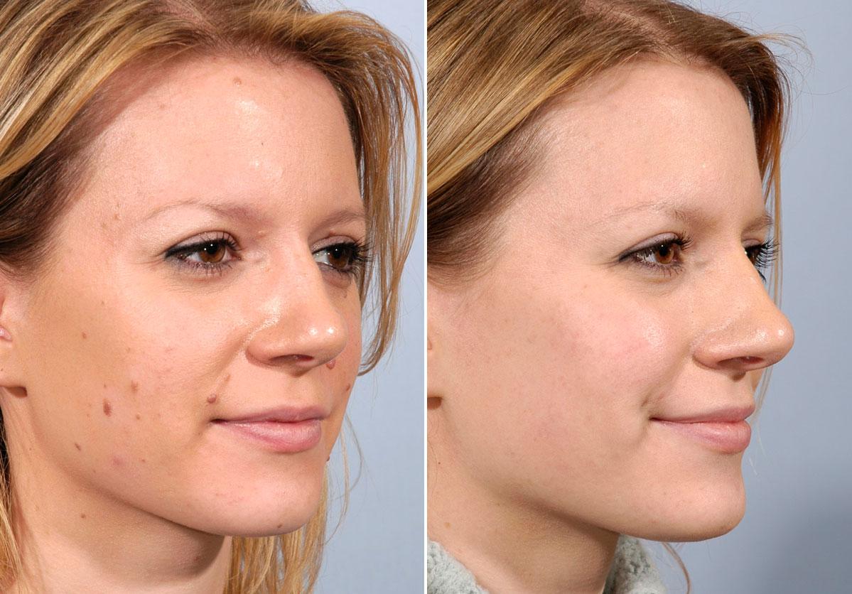 Facial Scar & Mole Revision in Mumbai   Tattoo Removal